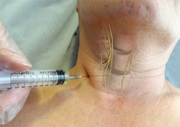 Recovery of Post Thyroidectomy Aphonia with Peri Recurrent Laryngeal Nerve Injection of Meloxicam