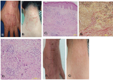 Successful Treatment of Annular Elastolytic Giant Cell Granuloma with Tranilast and Topical Glucocorticoid under the Strict Restriction of Sun Exposure